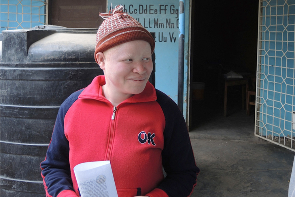 Melissa Stanford was 7 years old when her sister, Mariamu, was brutally attacked and lost both of her arms. Today Melissa is 14 and dreams of becoming a lawyer to advocate for the rights of people with albinism. (Courtesy of Global Sisters Report/Melanie Lidman)